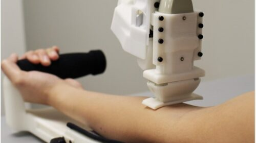 Artificial Intelligence to draw blood