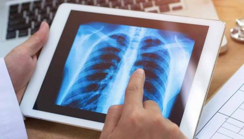 DeepScribe raises $5.2M to transcribe medical notes with AI